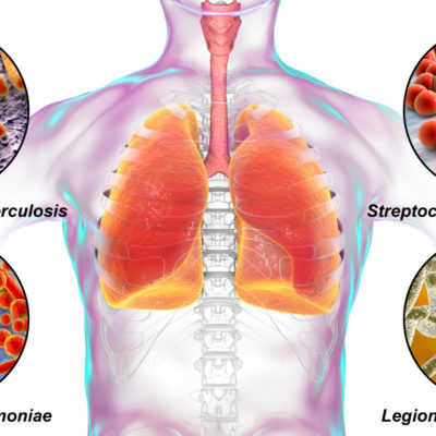 Photo of the human body and how Legionnaires disease affects it